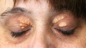 ksanteplazma